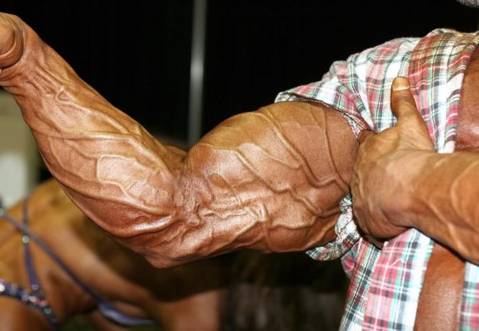 Man-With-Vascular-Arms