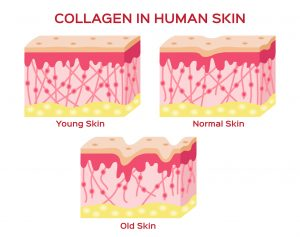 When considering hydrolyzed collagen vs. denatured collagen., different forms have different benefits.